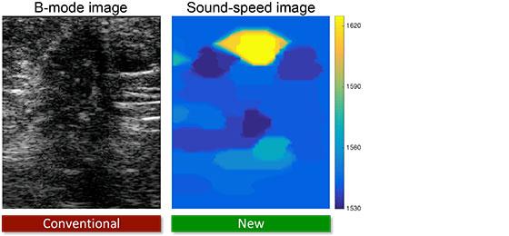 Dieses Bild zeigt ein Ultraschallbild.